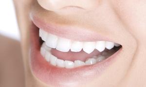 Sbiancamento denti OdontoSalute: Visita, pulizia denti e sbiancamento led presso la clinica OdontoSalute di San Pietro in Casale (sconto fino a 72%)