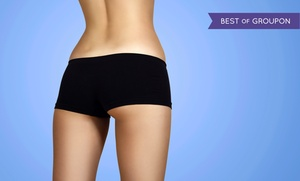 Luxe Laser Vein & Body Center: Laser Spider-Vein Treatments at Luxe Laser Vein & Body Center (Up to 63% Off). Three Options Available.