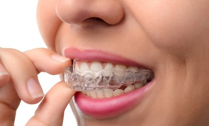 Credit Towards Full or Express <strong>Invisalign</strong> Treatment at Smile Lab (Up to 98% Off)