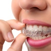 98% Off Invisalign Treatment at Hudson River Braces