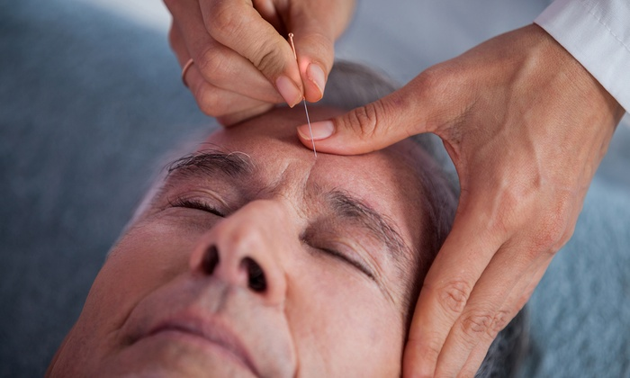 Join Hands Acupuncture Wellness - San Diego: One Acupuncture Session at Join Hands Acupuncture Wellness (58% Off)