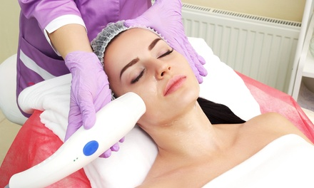 $29 for Full Face IPL Photorevitalisation with Take Home Collagen Mask at MD Cosmedical Solutions (Up to $160 Value)