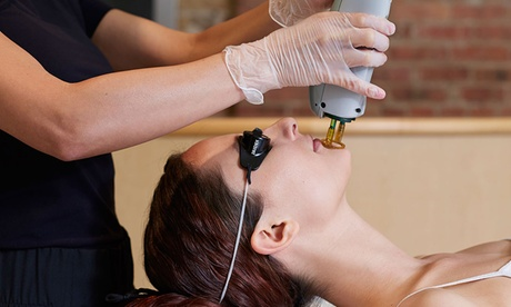 One or Three IPL Treatments for Neck, Face, or Chest at Colorado MediSpa (Up to 80% Off). Six Options Available. 21fa1c94-49e6-4c85-8175-17a7ec0ecef4
