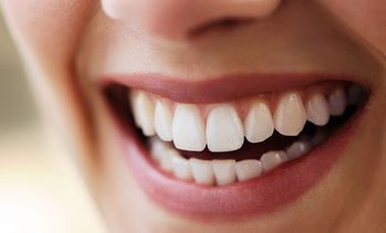 98% Off Invisalign Treatment at Arlington Dental Excellence
