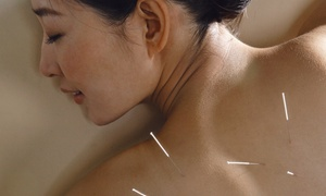 Theus Acupuncture: One or Two Acupuncture Sessions with Consultation at Theus Acupuncture (Up to 61% Off)