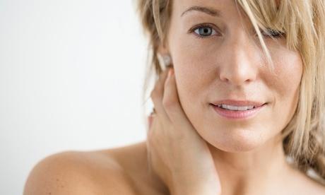 One or Three IPL Photofacial Treatments at MINTS (Up to 62% Off) 7a09560e-f0c2-4fff-9003-aca94e9cd93b