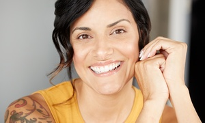 Seattle Executive Med Spa: One or Three Non-Surgical Facelift Treatments at Seattle Executive Med Spa (Up to 67% Off)