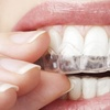 $66 for $1,500 Worth of Invisalign Treatment