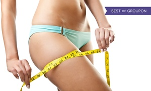 Le Fit Spa: LipoLaser Treatments at Le Spa Fit (Up to 87% Off)