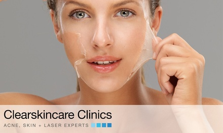 $59 for an Acne Skin Peel + LED Light Therapy Facial Package at Clear Skincare Clinics, 46 Locations Up to $89 Value