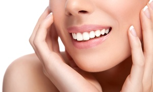Studio Dentistico Cacelli Dott Roberto: Visita odontoiatrica, igiene, sbiancamento e otturazione presso lo Studio dentistico a Vercelli (sconto fino a 90%)