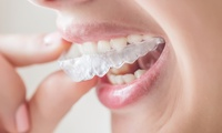 Invisalign Braces for One or Both Arches and Home Whitening Kit at Harley Dental and Facial Aesthetics (Up to 59% Off)