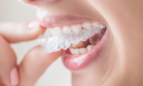 Buono sconto da 1500 € per un allineatore dentale invisibile (sconto 97%)