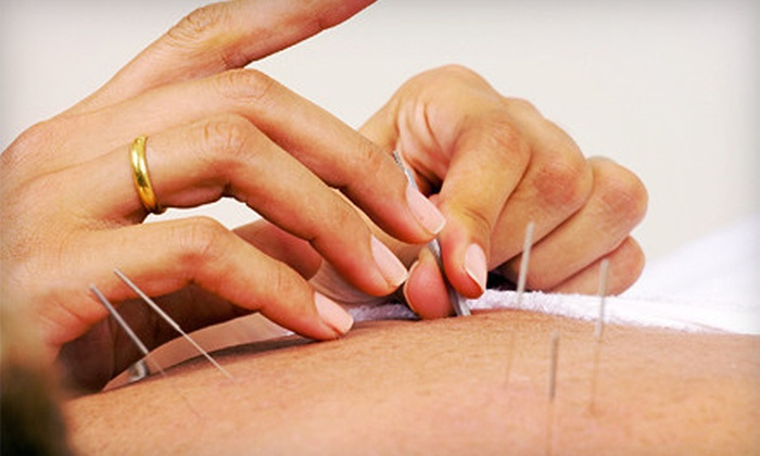 Peck's Family Acupuncture - Waterboro: One, Three, or Six Acupuncture Treatments at Peck's Family Acupuncture in Waterboro (Up to 65% Off)