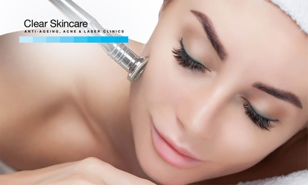 $59 Skin Express Microdermabrasion, LED Light Treatment, Double Cleanse + Active Serum Application Up to $139 Value