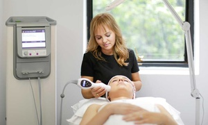 Duquessa: One ($29), Two ($55) or Three Lactic Facial Peels ($79) at Duquessa, Sydney or Melbourne (Up to $200 Value)