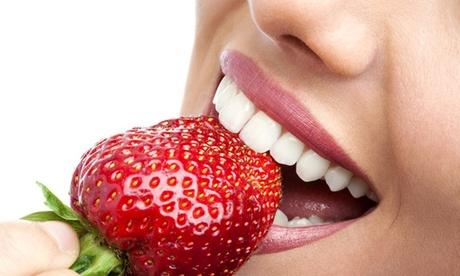 1 séance de blanchiment dentaire sans peroxyde de 40 minutes ou d'1h dès 29,90 € à l'institut BCBG