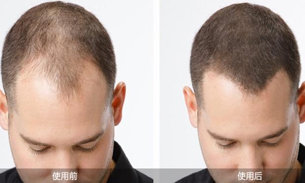 Natural Hair Fibers Groupon