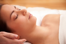 Texas Acupuncture Clinic: Up to 64% Off Full Packages at Texas Acupuncture Clinic