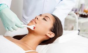 Kosmetikstudio AZALEE: 1x oder 2x Microneedling inkl. Radiofrequenz bei Kosmetikstudio AZALEE (bis zu 56% sparen*)