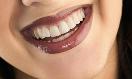 Visita, pulizia dei denti e bite