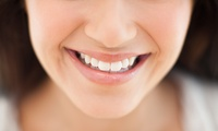 Dental Check-Up plus Scale and Polish with AirFlow Treatment at Queen's Gate Dental Practice, Kensington (80% Off)