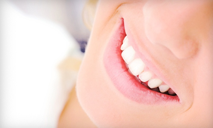 Smile FX USA - Multiple Locations: $49 for In-Office Teeth Whitening at Smile FX USA ($299 Value). Three Locations Available.