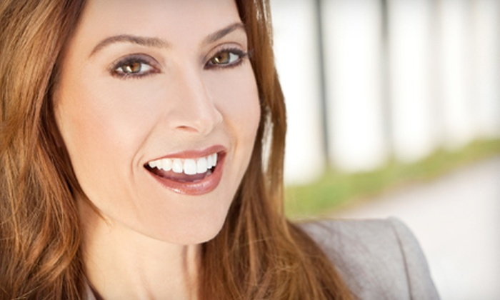 Q Express Smiles - Rockingham: $49 for 20-Minute Professional Teeth-Whitening Session at Q Express Smiles in Bedford (Up to $114 Value)