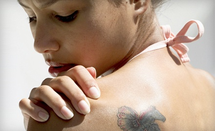 1 Tattoo-Removal Treatment on a Tattoo of Up to 10 Inches in Diameter (a $350 value) - Skin Perfect in Deer Park