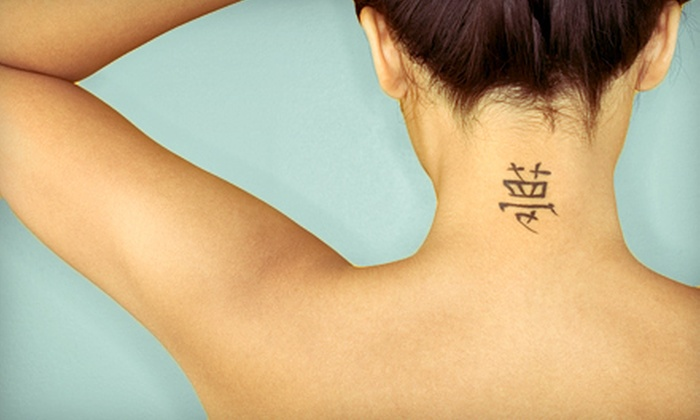 New Image Laser Tattoo Removal - East Ridge: Three Sessions for a Small, Medium, or Large Tattoo at New Image Laser Tattoo Removal (Up to 72% Off)