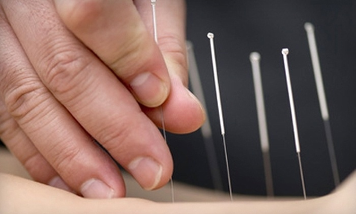 Acupuncture of Indiana - Multiple Locations: $35 for a Consultation and Acupuncture Session at Acupuncture of Indiana ($185 Value)