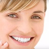 Half Off Invisalign Treatment in St. Charles