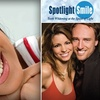 65% Off at Spotlight Smile
