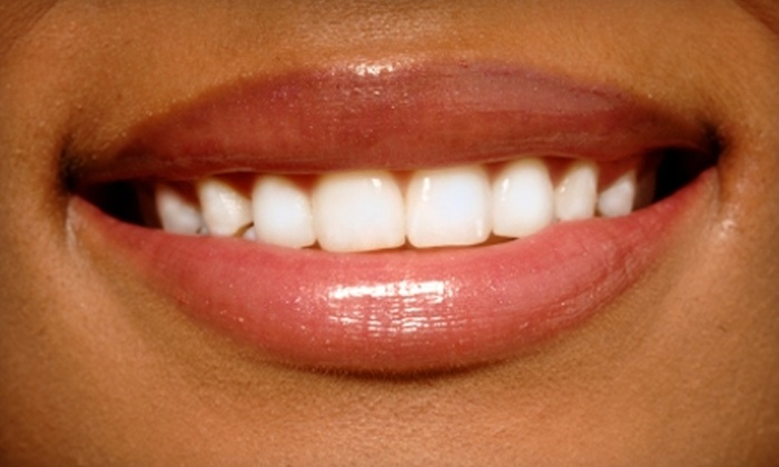 Active Dental - Multiple Locations: $149 for Four Teeth-Whitening Sessions at Active Dental ($495 Value)
