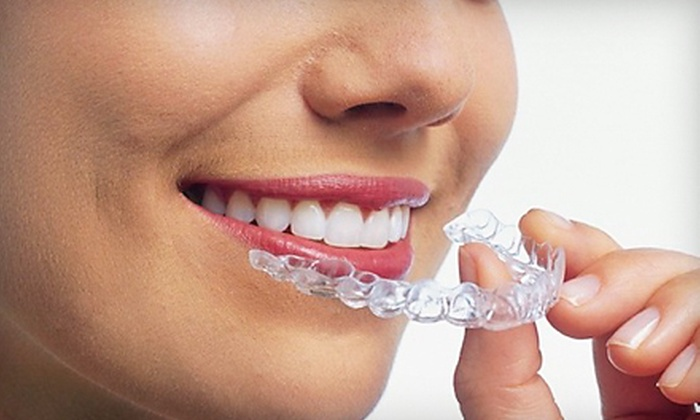 Max Arocha DMD - Plantation: $2,999 for a Complete Invisalign Orthodontic Treatment from Max Arocha DMD in Plantation ($6,500 Value)