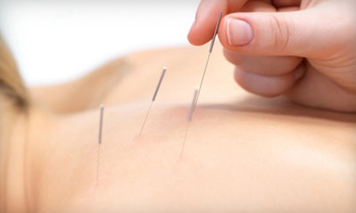 The Birch Center for Health - Bluff: $30 for One Acupuncture Session at The Birch Center for Health ($65 Value)