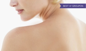 Depi-Light: Laserowe usuwanie tatuażu od 69,99 zł w Depi-Light