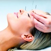 56% Off Acupuncture in West Palm Beach