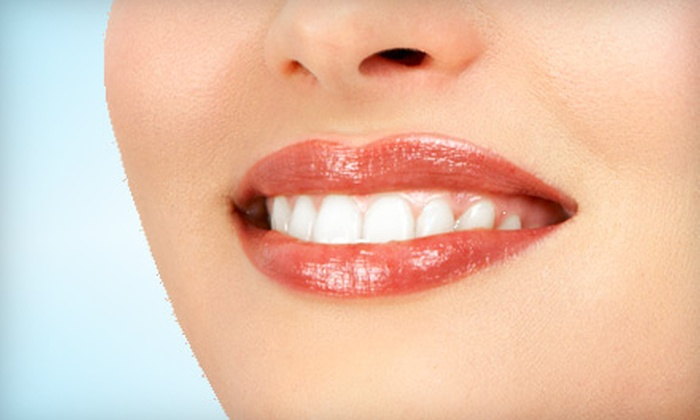 CJ Dental - Central Oklahoma City: One or Two Zoom! Teeth-Whitening Treatments Plus Take-Home Products at CJ Dental