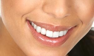 Biosano: Wybielanie zębów lampą LED od 99,90 zł w Biosano