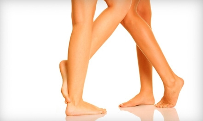 Vein Treatment Center - Upper East Side: $199 for Vein Consultation and Sclerotherapy Session at the Vein Treatment Center ($750 Value)