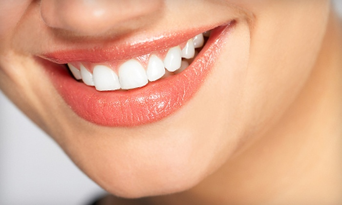 San Diego Smile Dentistry - Kearny Mesa: $59 for a Dental Package with Exam, X-rays, and Cleaning at San Diego Smile Dentistry ($491 Value)