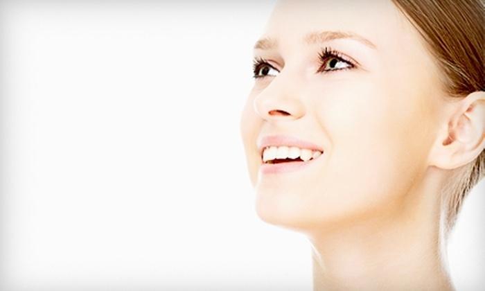 Elite MedSpa - Legacy Center: Microdermabrasion and Acne Treatment or Microdermabrasion and Two Acne Treatments at Elite MedSpa in Frisco