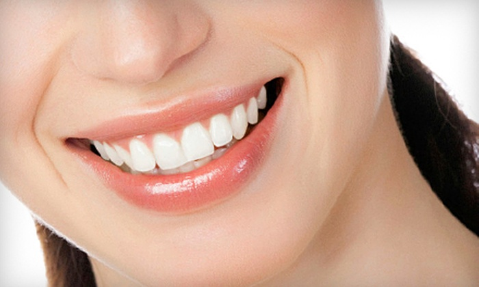 Otay Lakes Dental Group - Eastlake Business Center: $59 for a Dental Exam, X-rays, Cleaning, and Teeth-Whitening Kit at Otay Lakes Dental Group in Chula Vista ($493 Value)