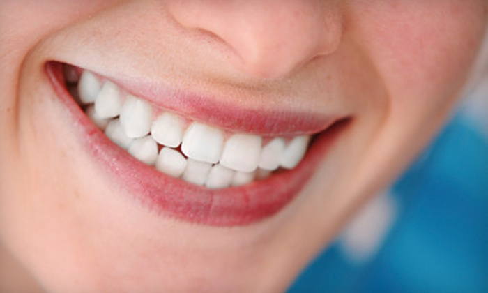 Xtreme Teeth Whitening LLC - Monroeville Mall: One, Two, Three, or Four Teeth-Whitening Sessions at Xtreme Teeth Whitening LLC in Monroeville (Up to 64% Off)