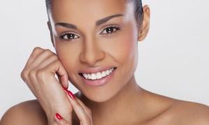 NZOZ Dentimed Poradnia Stomatologiczna: Nakładkowe wybielanie zębów za 299,99 zł w NZOZ Dentimed Poradnia Stomatologiczna