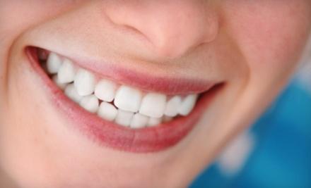 Boston Dental Group: 1 Take-Home Prescription-Strength Whitening Kit - Boston Dental Group in North Las Vegas