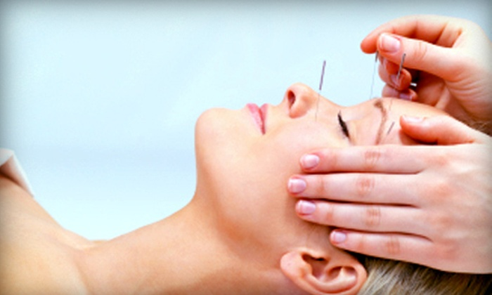 Acupuncture Center - Sylvan Grove: $39 for a Traditional Chinese Acupuncture Treatment at Acupuncture Center in Overland Park ($120 Value)