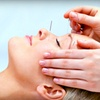 68% Off at Acupuncture Center in Overland Park
