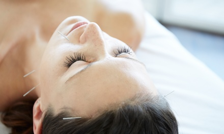 One Acupuncture Session with Optional Massage at AcuBalance Wellness of Long Island (Up to 64% Off)
